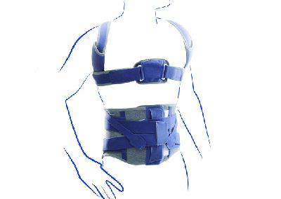 orthopaedic bracing15